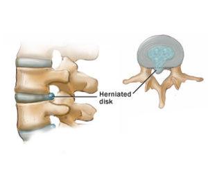 Spinal disk